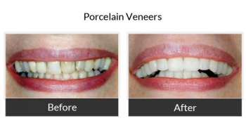 Porcelain Veneers Before and After Photos 1