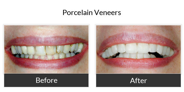 Porcelain Veneers Before and After Pictures 4