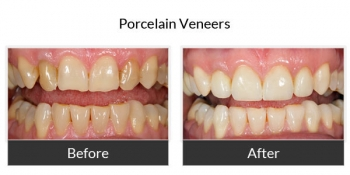 Porcelain Veneers Before and After Photos 2