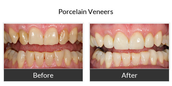 Porcelain Veneers Before and After Pictures 1