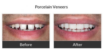Porcelain Veneers Before and After Photos 3