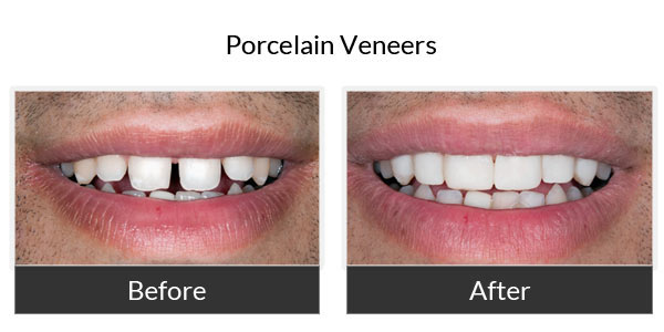Porcelain Veneers Before and After Pictures 5