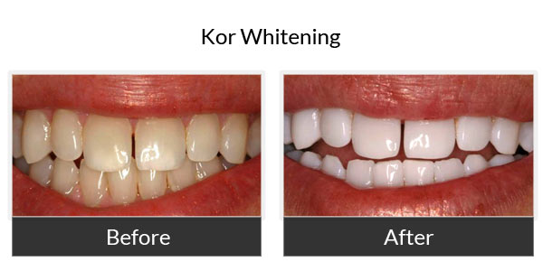 KoR teeth Whitening Before and After