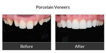 Porcelain Veneers Before and After Photos 4