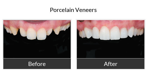Porcelain Veneers Before and After Pictures 2