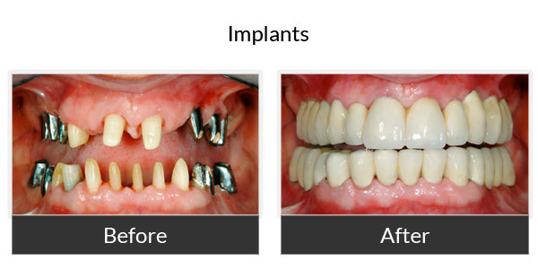 Implants Before and After Pictures 3