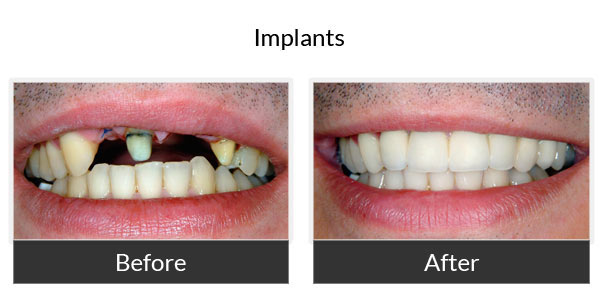 Implants Before and After Pictures 1