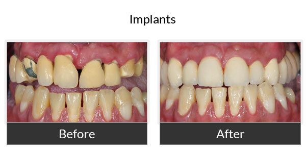 Implants Before and After Pictures 2