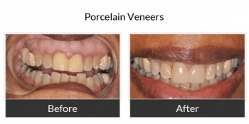 Porcelain Veneers Before and After Photos 5