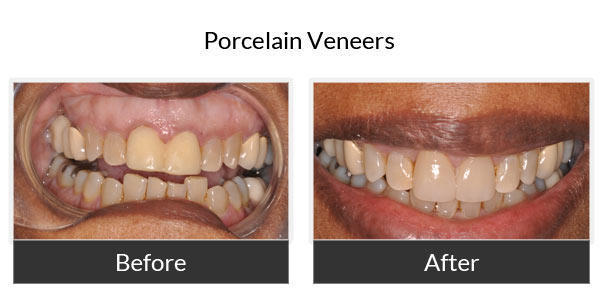 Porcelain Veneers Before and After Pictures 3