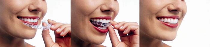 Invisalign Braces | Franklin Avenue Dental Care | Garden City Dentist
