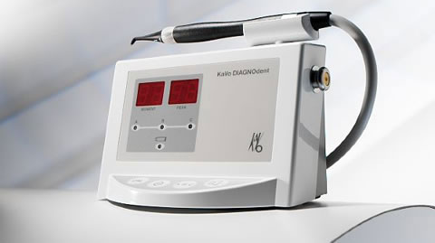 DIAGNOdent Laser Assisted Cavity Detection